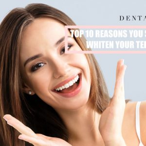 top_10_reasons_you_should_whiten_your_teeth_1