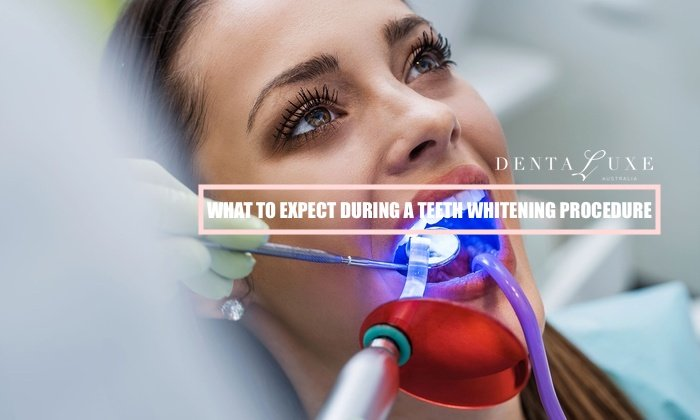 What To Expect During A Teeth Whitening Procedure