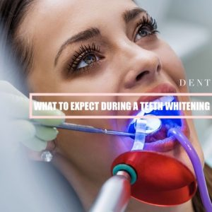 what-to-expect-during-a-teeth-whitening-procedure