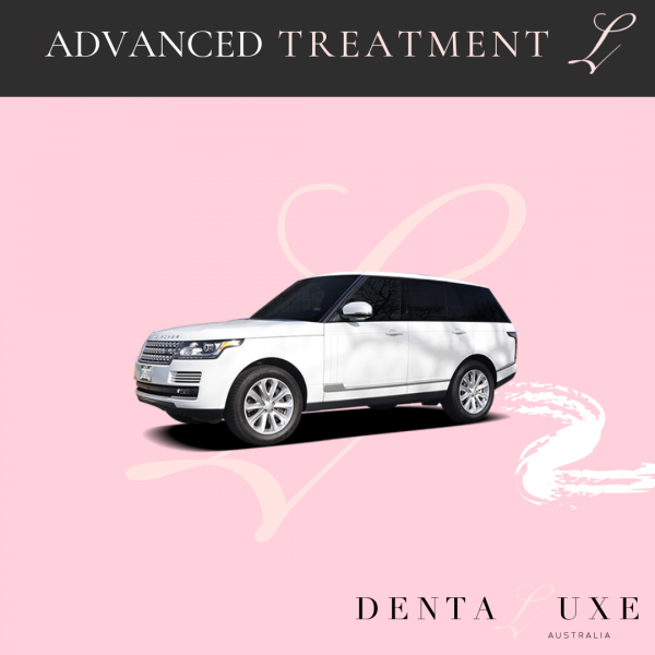 advanced mobile teeth whitening treatment